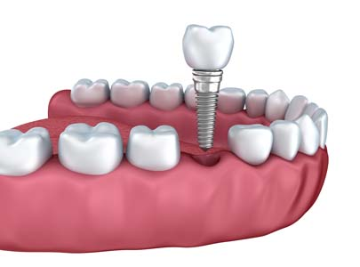 How Dental Implants Are Placed In The Jawbone