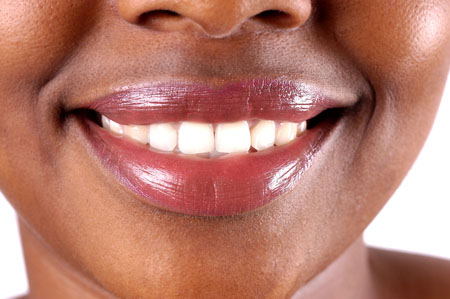 A Los Angeles Dentist Reviews A Boston University Study On Coffee And Gum Health